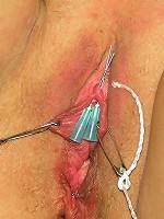 Needles in Clitoris